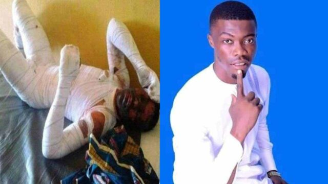 Man dies after his 18-year-old girlfriend set him ablaze over marriage